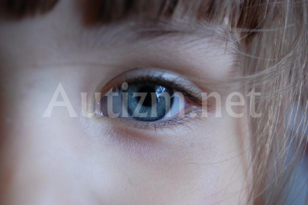 Аутизм – проявления и причины